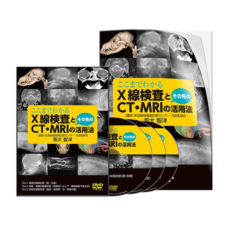 坂大PJ_ここまでわかるX線検査とその先のCT・MRIの活用法│医療情報研究所DVD