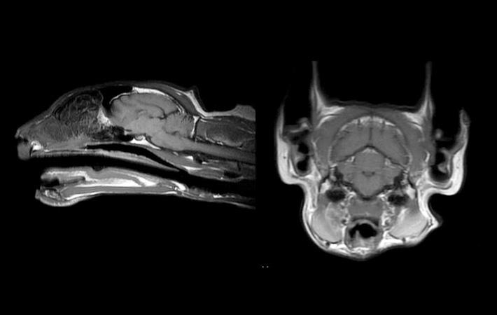 続けておこなわれたMRIの画像