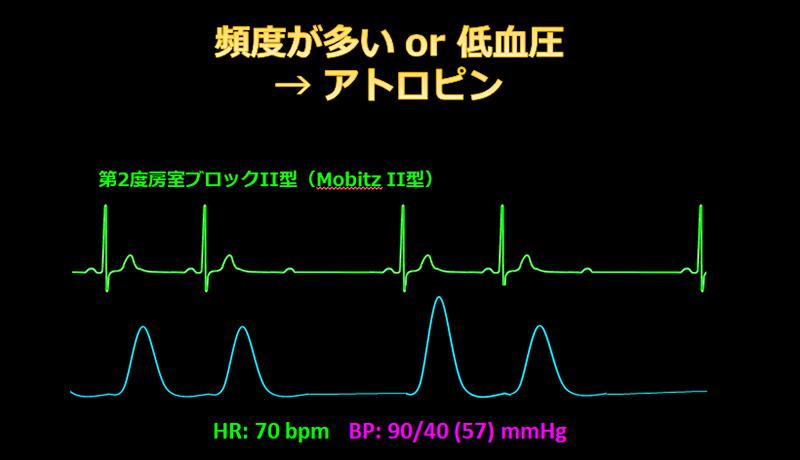 頻度が多いor低血圧→アトロピン