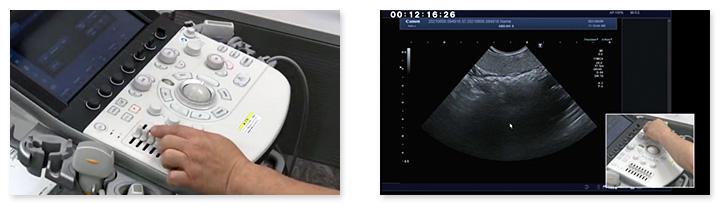 キレイな画像が簡単に描出できる、超音波装置の設定がわかります