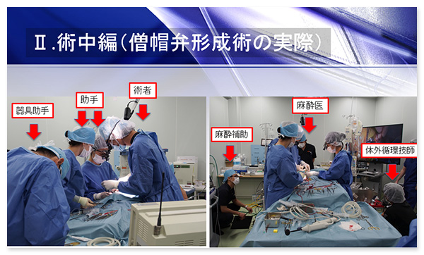 僧帽弁閉鎖不全症の外科手術