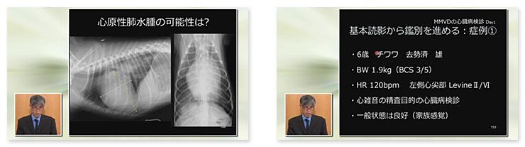 異常所見の方向性が、心原性肺水腫の直前を捉えるポイントです