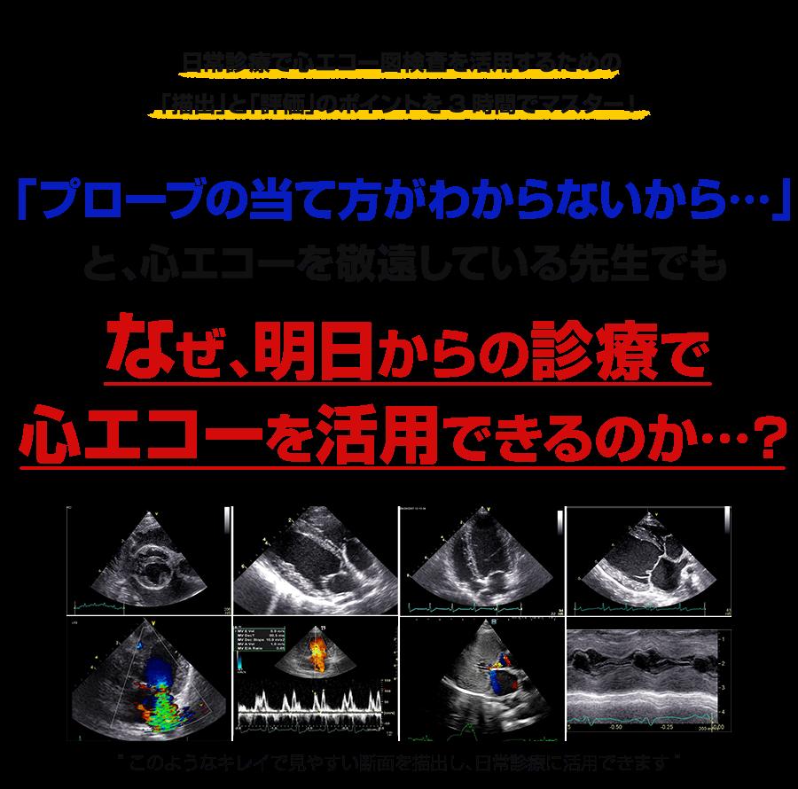 日常診療で心エコー図検査を活用するための「描出」と「評価」のポイントを3時間でマスター!なぜ、6つの基本断層像の描出と心疾患の正確なスクリーニングが15分でできるのか…?