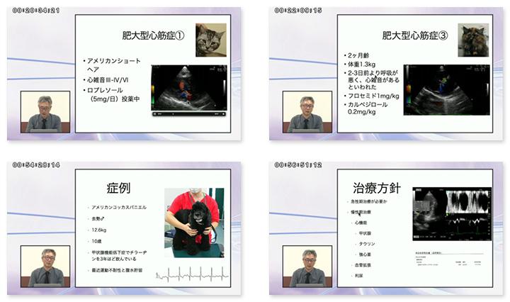 田中先生のわかりやすい解説で心筋症の治療戦略を学べます