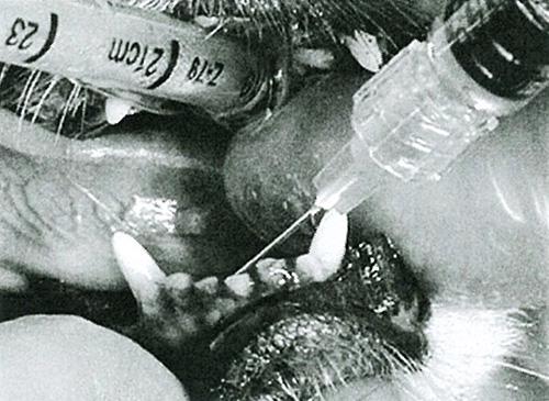 エナメル質の再生や歯槽骨の再生方法をご説明します