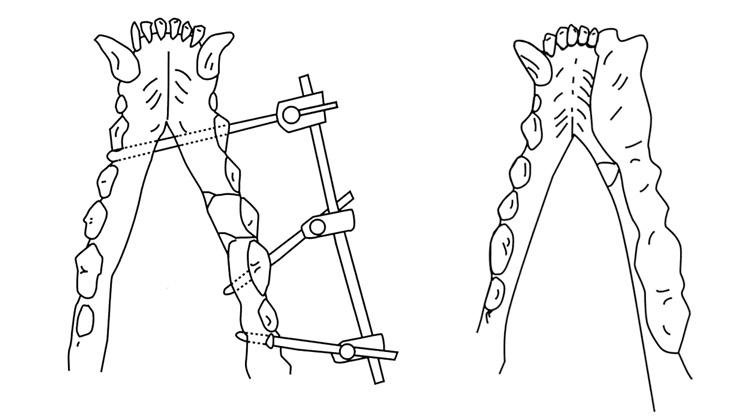 顎骨骨折の治療を適切におこなう方法をご説明します